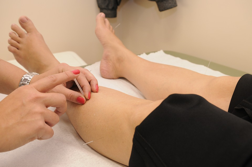 How to Manage Sports Injuries with Acupuncture