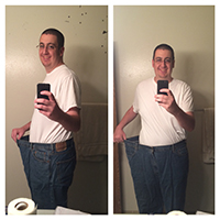 Before After Weightloss